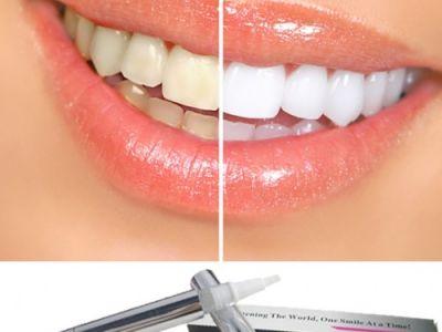 За красива усмивка! Писалка за избелване на зъби